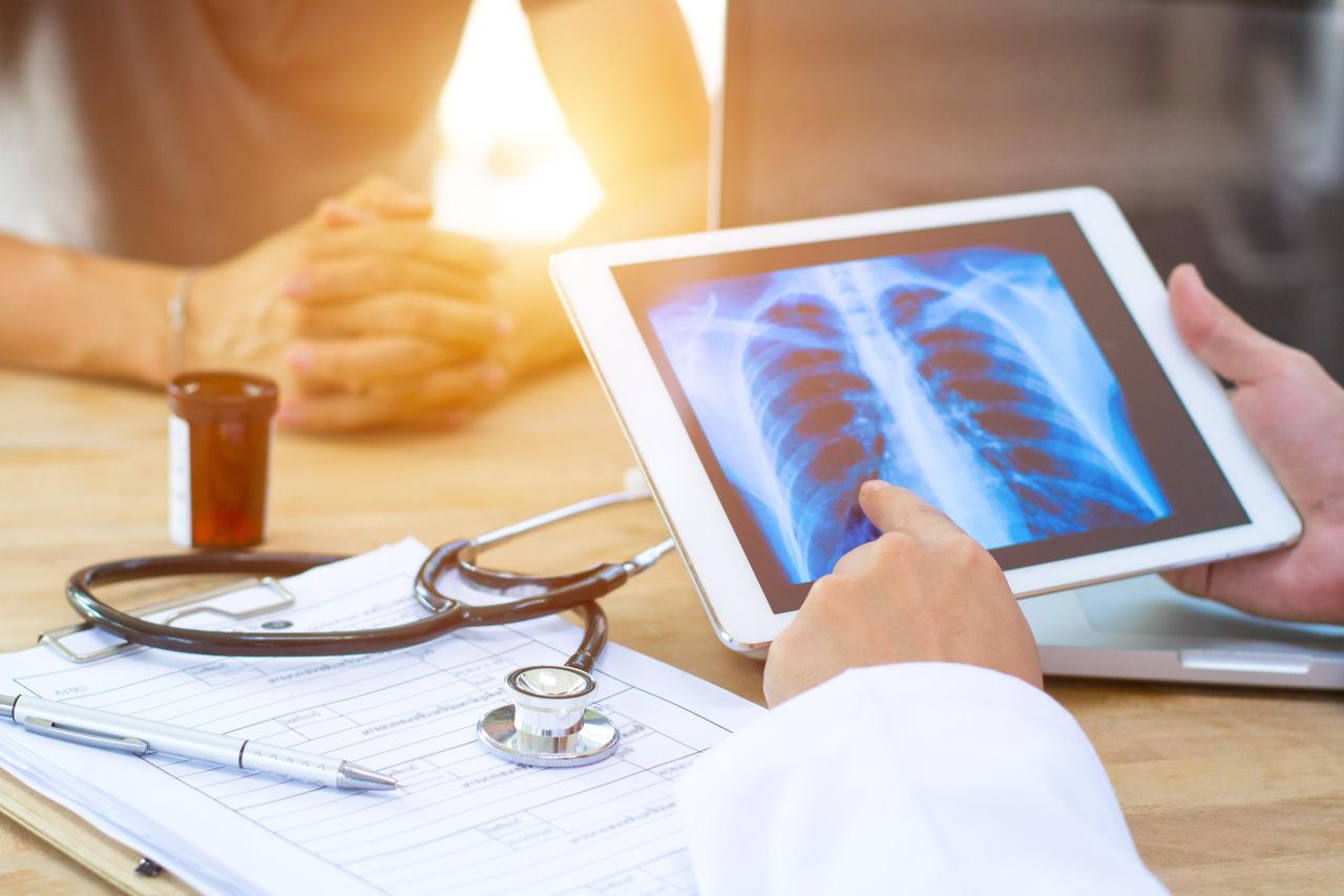 5 primeiros sinais mais comuns do câncer de pulmão