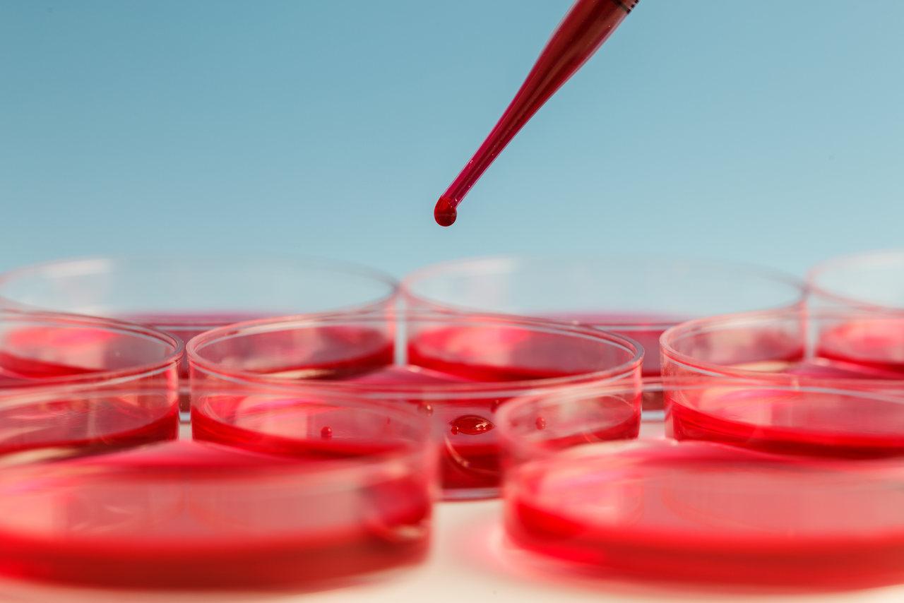 Leucemia: descubra os mitos e as verdades sobre a doença