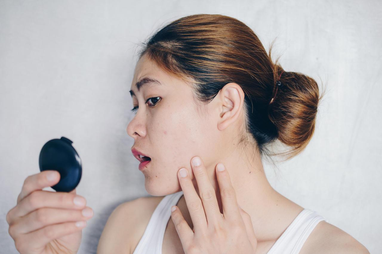 Oleosidade no rosto: veja dicas para acabar de vez com esse problema!