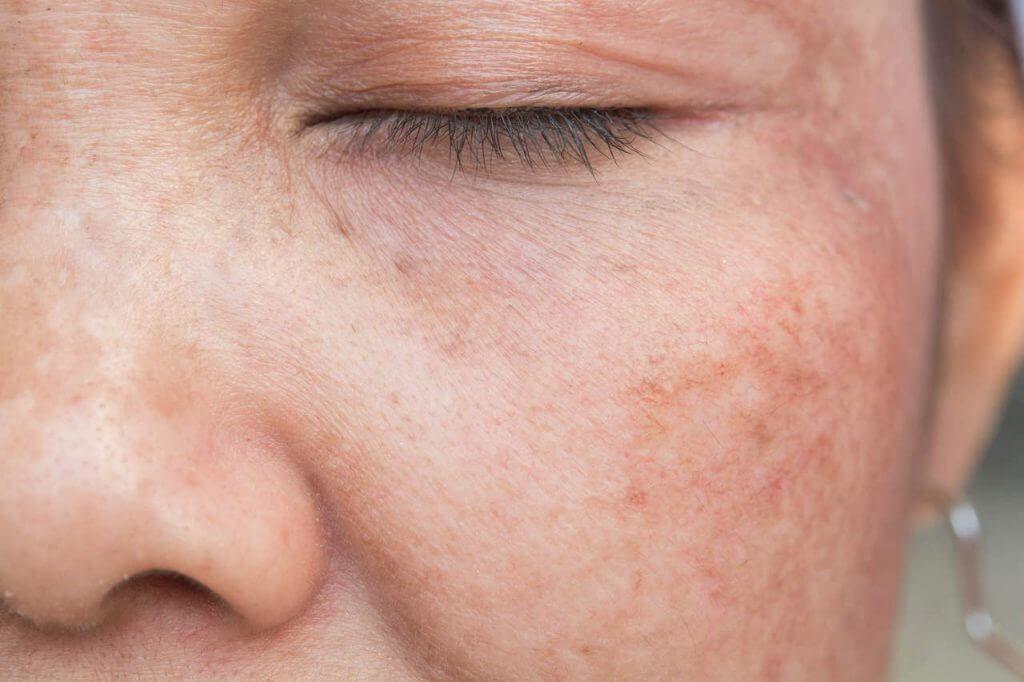 um sinal de envelhecimento são manchas na pele