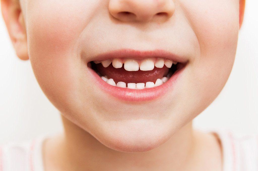Por que a saúde bucal das crianças é tão importante? – Drogaria Santo  Remédio