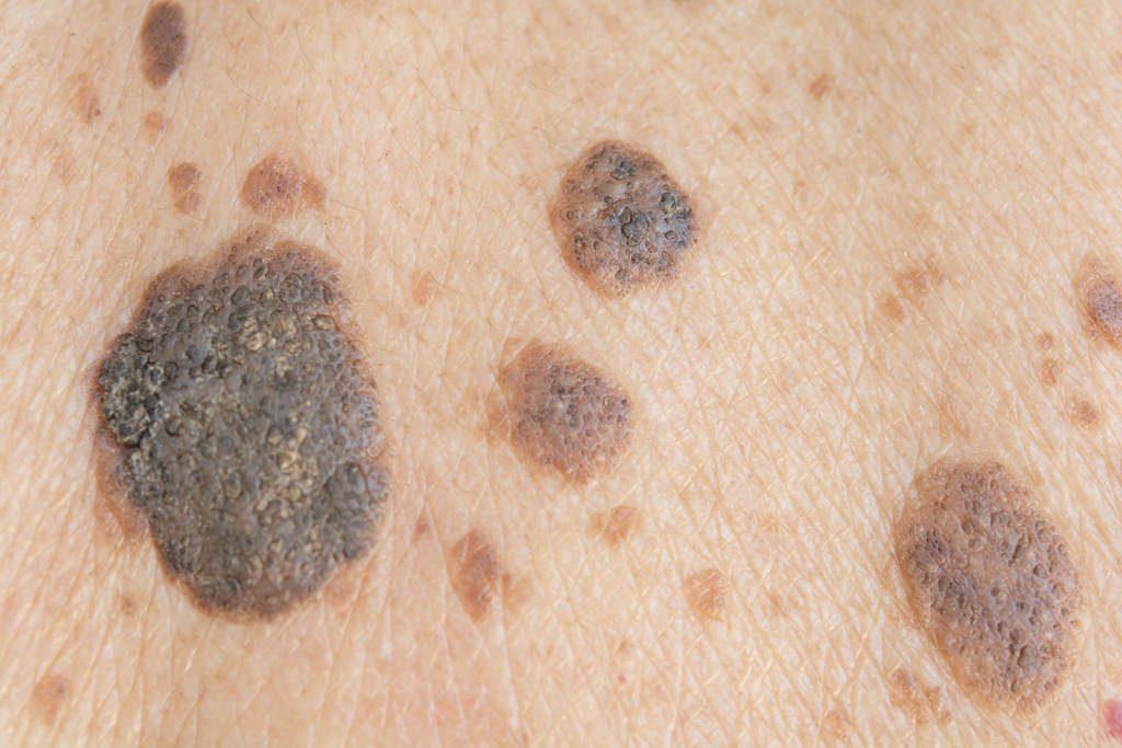 cancer-de-pele-melanoma