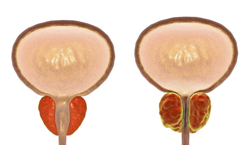cancer de prostata pode matar toxine arten