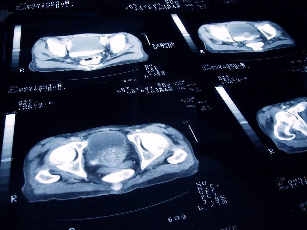 cancer-prostata