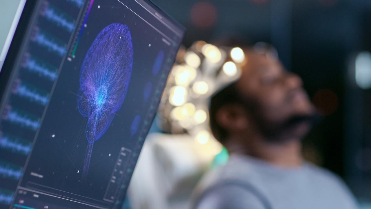 Sabe o que são doenças cerebrovasculares? Leia e descubra!