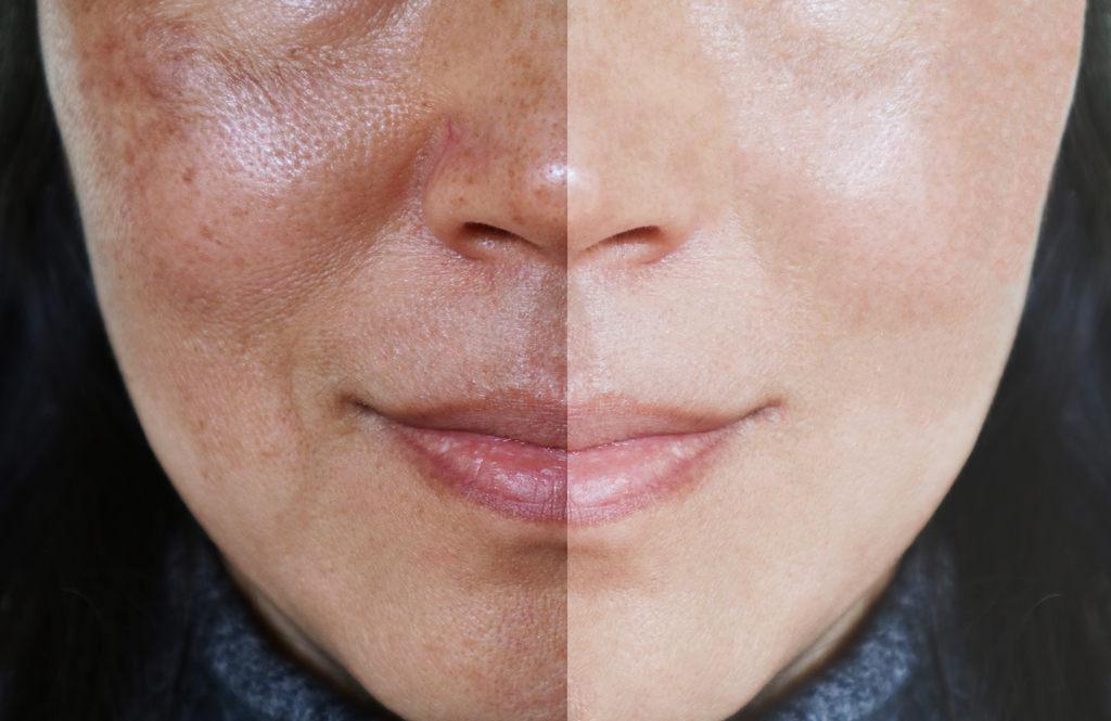Após os 30, as pessoas tendem a se preocupar mais com os cuidados. Veja agora quais os melhores tipos de produtos para a pele!