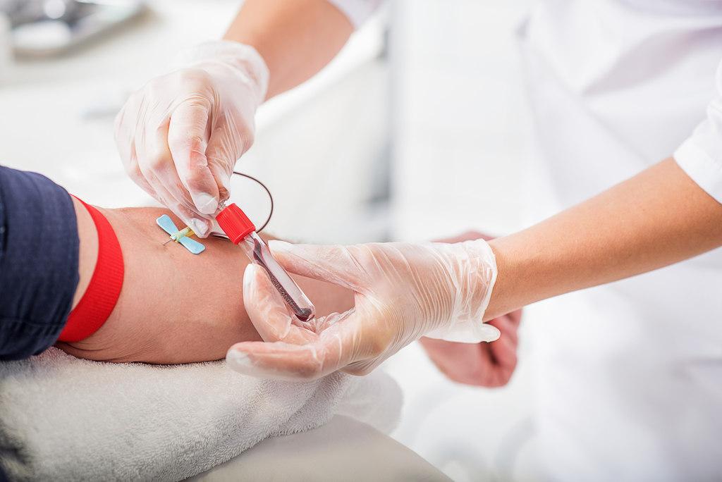 como doar sangue: Saiba os benefícios de doar sangue: Veja quem pode e 6 motivos para começar