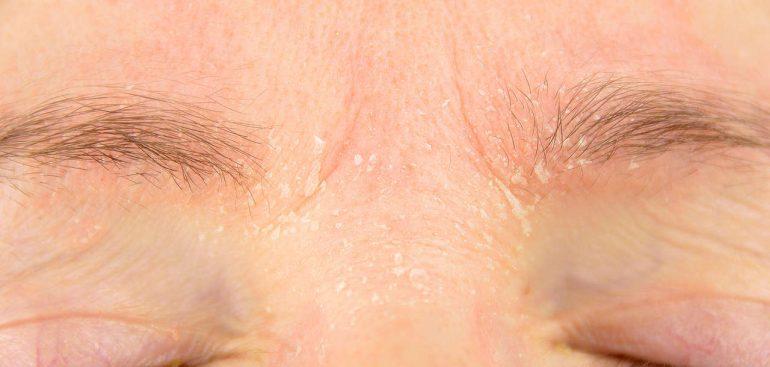 Como evitar a descamação da pele.