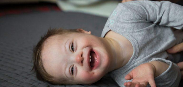 Aprenda a identificar a Síndrome de Down, suas características e cuidados necessários para a saúde e bem-estar ao ler o nosso artigo. Confira!